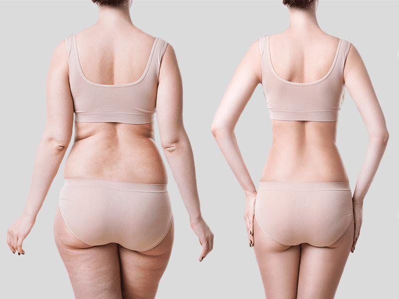 Body Contouring-women