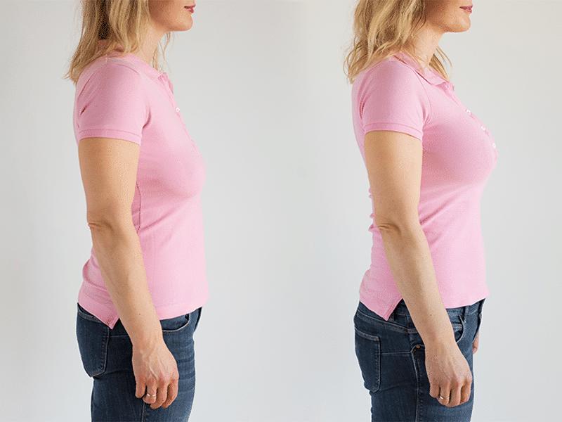 Breast Surgery-women