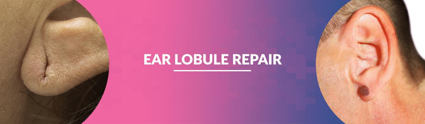 Ear-Lobule-Repair