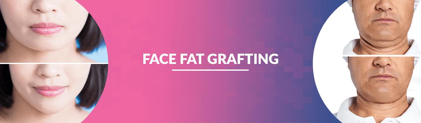 FACE-FAT-GRAFTING