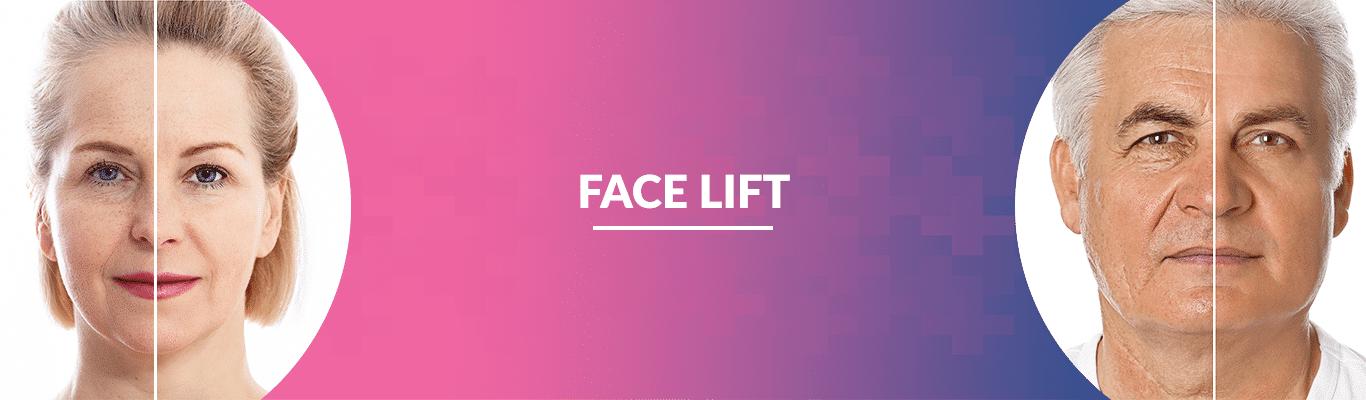 FACE-LIFT