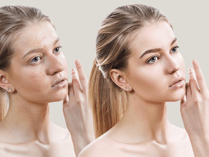 Facial Contouring-women