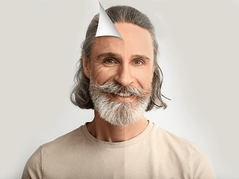 Facial Rejuvenation b&a