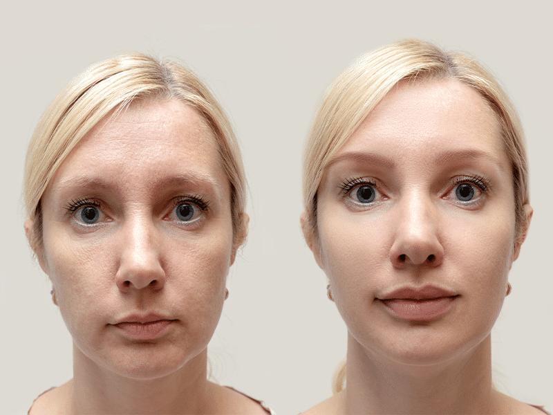 Facial Rejuvenation-women