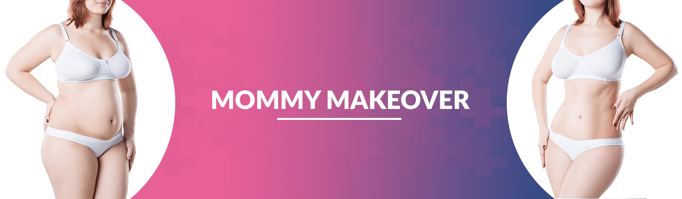 Mommy-Makeover