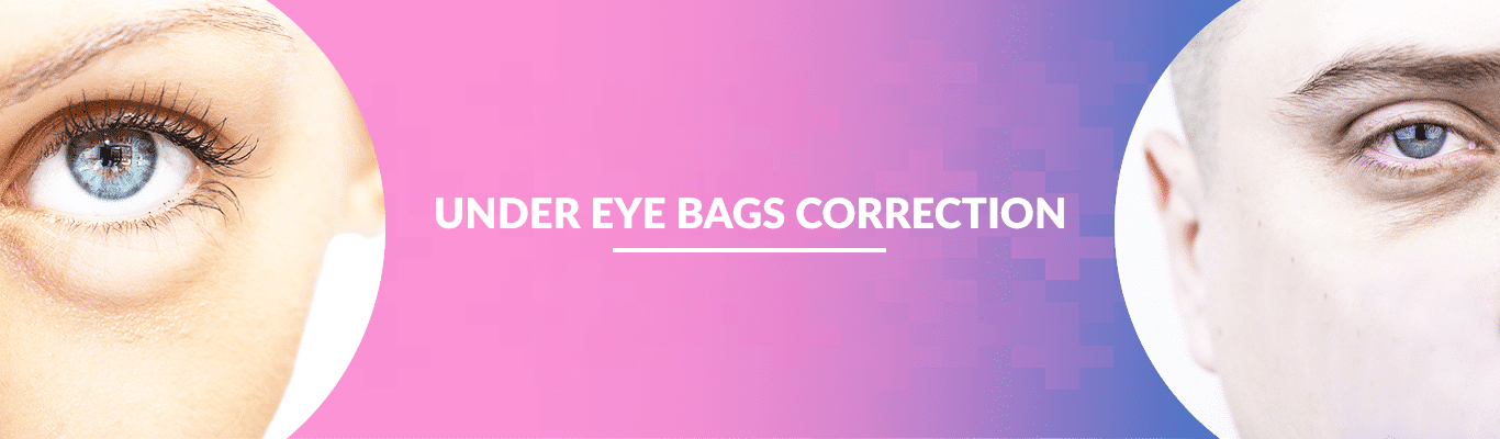Under-Eye-Bags-Correction