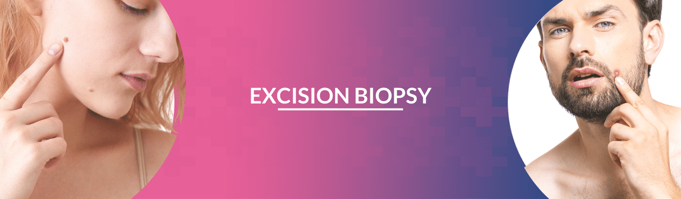 exicision biopsy
