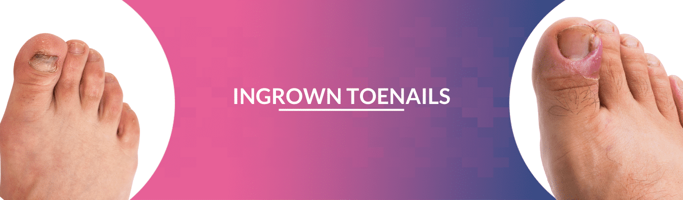 Ingrowing Toe Nails Treatment In Hyderabad | PrettyU