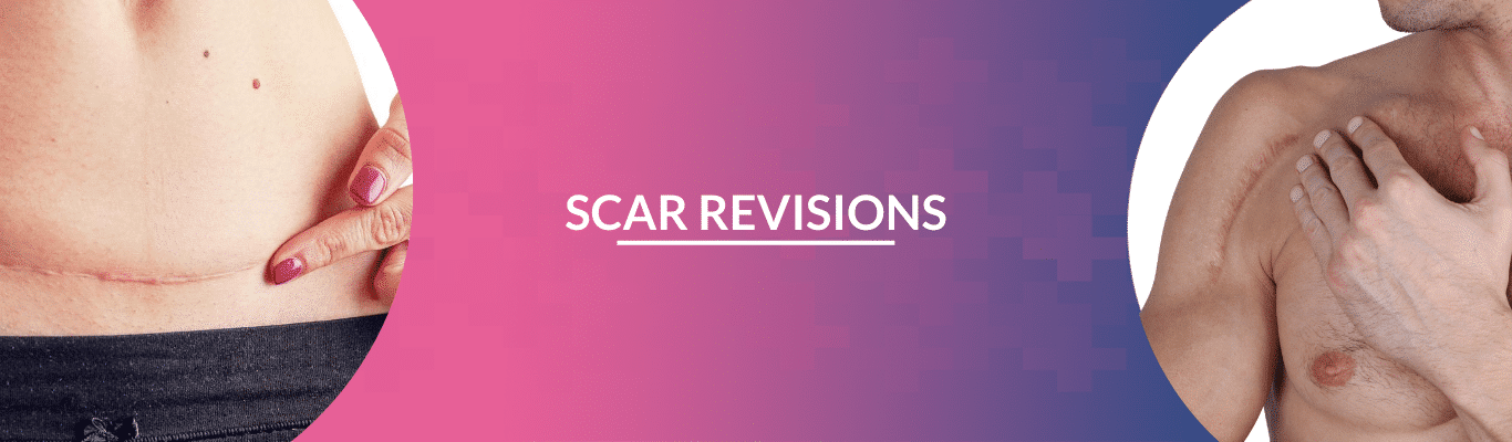 scar revisions